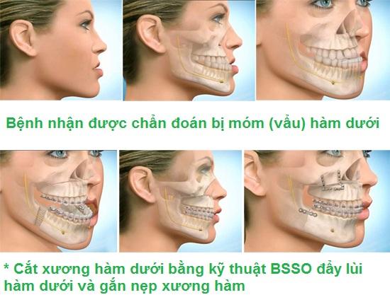 Quy trình phẫu thuật vẩu xương hàm
