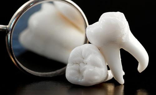 Răng khôn có mấy chân? 1