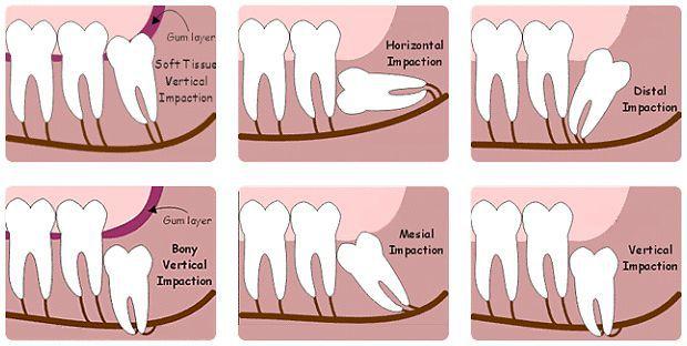 Răng khôn là răng nào? 2