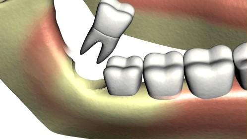 Răng khôn mọc lệch ra má phải làm sao? 3