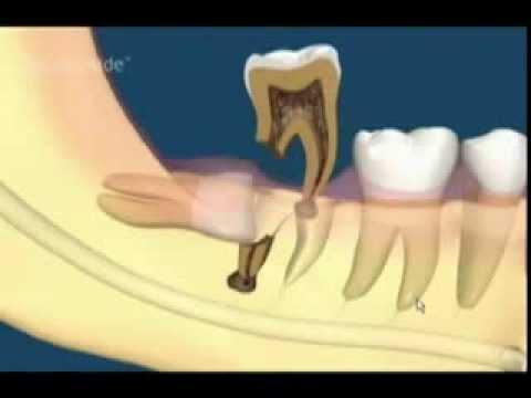 Răng khôn mọc ngầm có nên nhổ không? 1
