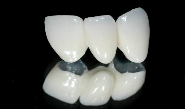 Dịch vụ răng sứ thẩm mỹ 2