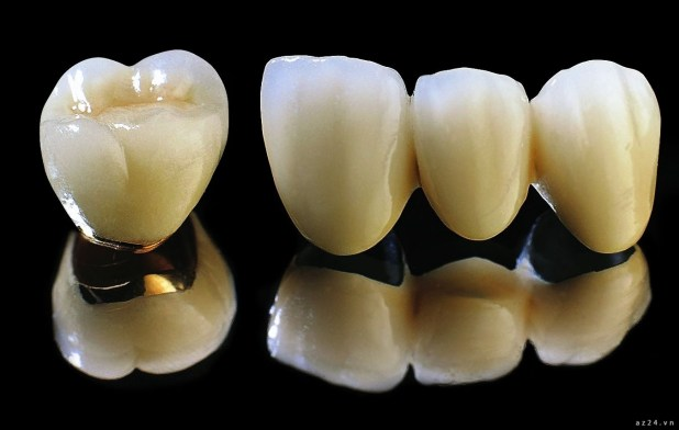 Răng sứ Titan 1