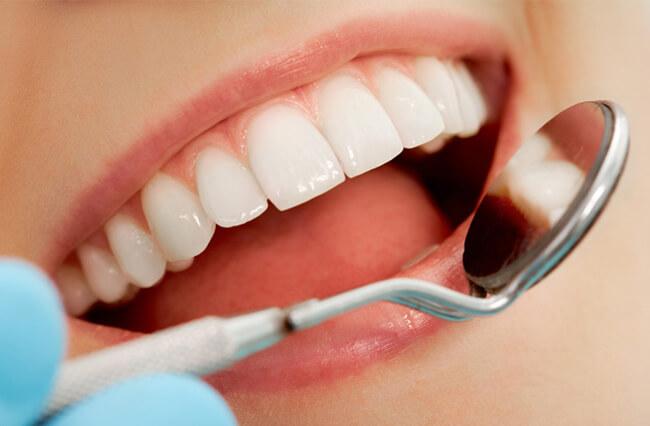 Răng sứ Titan 2