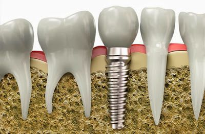 Răng sứ Titan 3