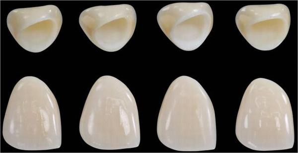 Răng sứ Venus 2