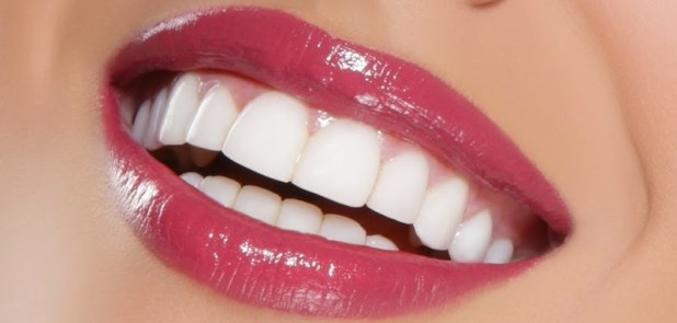 Răng sứ Venus 3