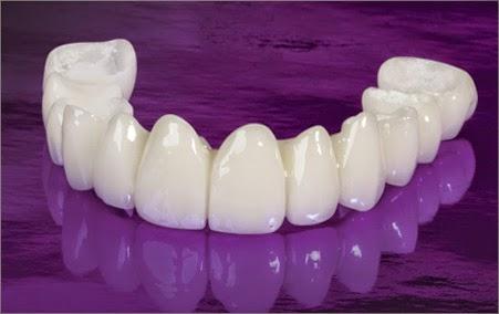 Răng sứ Zirconia 3