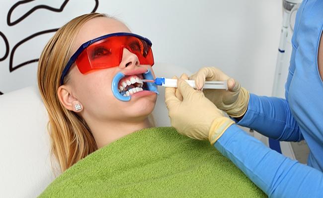 Tẩy trắng răng an toàn