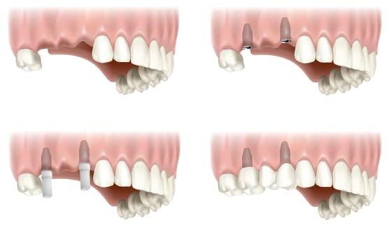 Trồng răng implant giá bao nhiêu tiền?