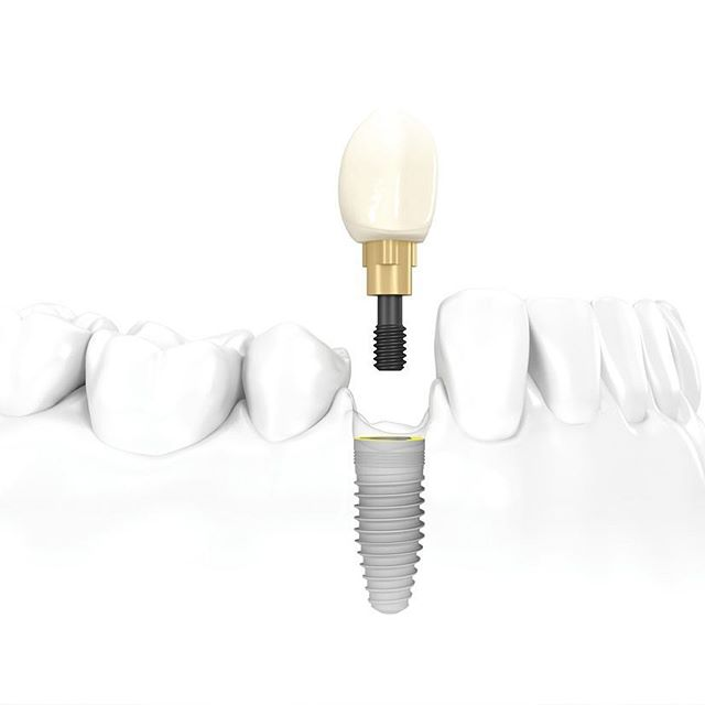 trong-rang-implant-gia-bao-nhieu-tien-3