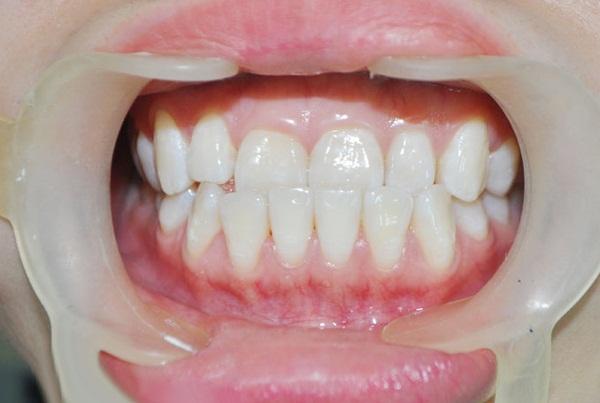 Vẩu hàm dưới – nguyên nhân và cách điều trị tốt nhất hiện nay
