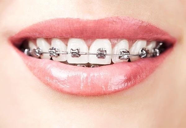 5 loại niềng răng được sử dụng phổ biến hiện nay