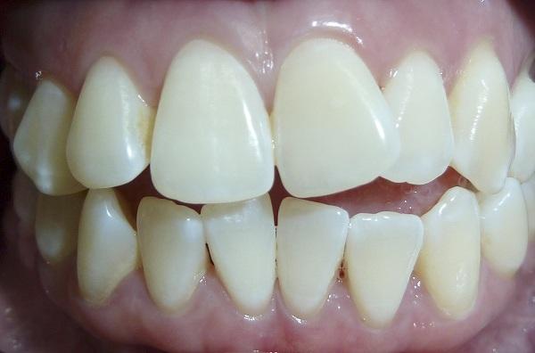 Bọc răng sứ cho răng khấp khểnh hiệu quả và thẩm mỹ