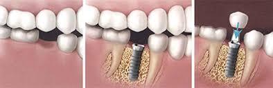 Bảng giá trồng răng Implant mới cập nhật