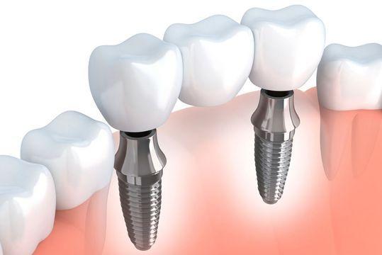 bang-gia-trong-rang-implant-2