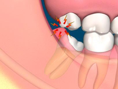 Bị mọc răng khôn phải làm sao? 1
