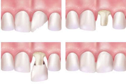 Bọc răng sứ cho răng cửa chính xác và thẩm mỹ