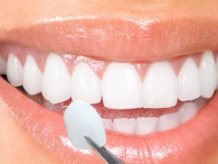 Bọc răng sứ có niềng được không? 1