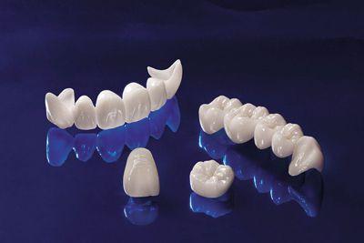 Bọc răng sứ có niềng được không? 2