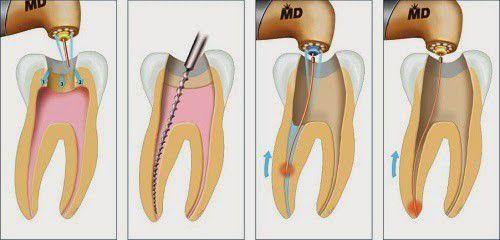 Bọc răng sứ có phải lấy tuỷ không?