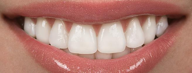 Bọc răng sứ thẩm mỹ tiêu chuẩn quốc tế