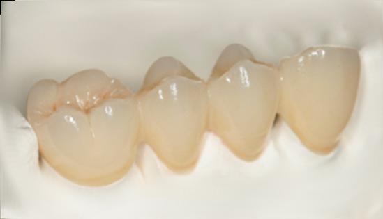 Bọc răng sứ Titan thẩm mỹ và chất lượng