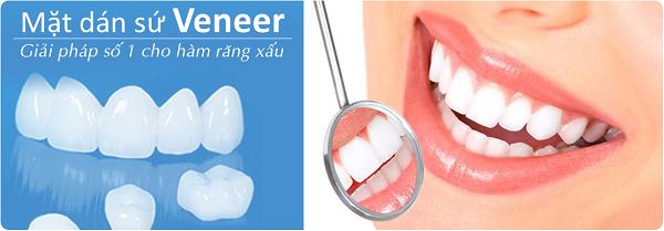Bọc răng sứ Veneer 1