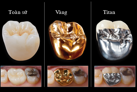 Các loại răng sứ 1