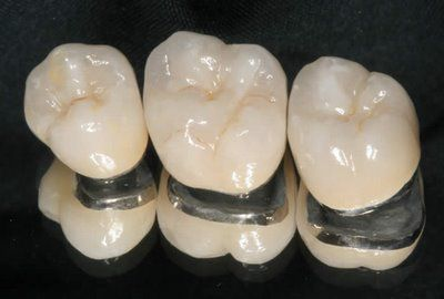 Các loại răng sứ 2
