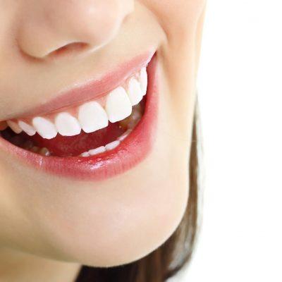 Tìm hiểu thông tin về các loại răng sứ cao cấp