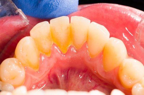 Cạo vôi răng bằng máy siêu âm ở đâu tốt nhất TP HCM? 1