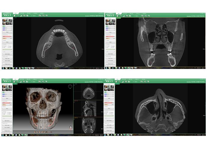 cấy ghép Implant 3D