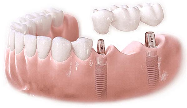 Cấy ghép Implant an toàn