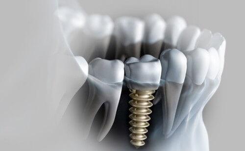 cay-ghep-rang-implant-co-dau-khong-1