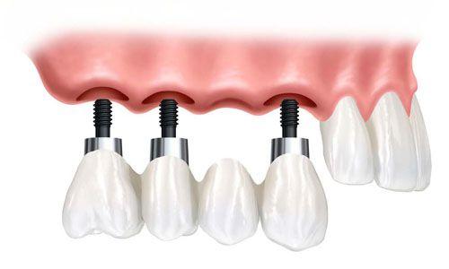Cấy Implant răng cửa tiêu chuẩn quốc tế