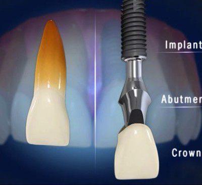 cay-implant-rang-cua-3
