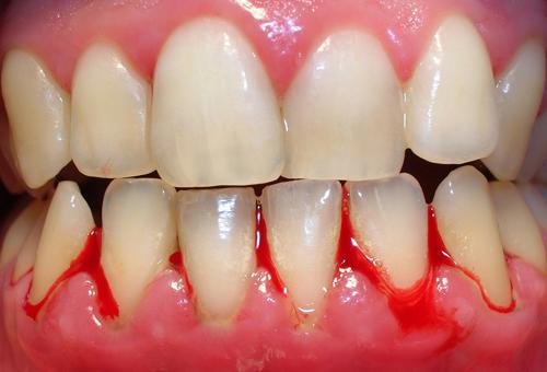 Chảy máu chân răng nguyên nhân và cách điều trị 1