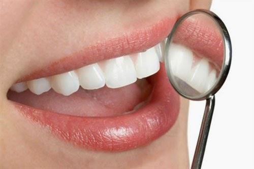 Chảy máu chân răng nguyên nhân và cách điều trị 2