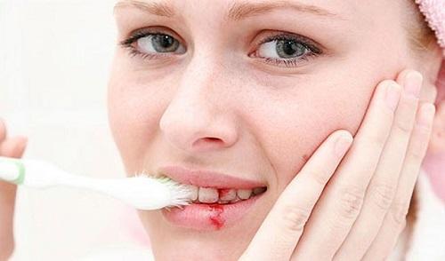 Chảy máu chân răng khi đánh răng và điều bạn nên làm 1
