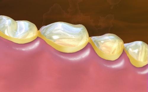 Chảy máu chân răng phải làm sao để khắc phục? 1
