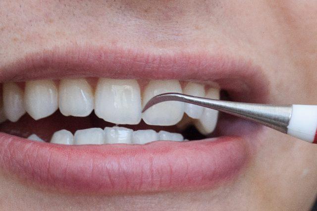 Chảy máu chân răng phải làm sao để khắc phục? 3