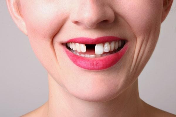 Chi phí làm răng giả 1