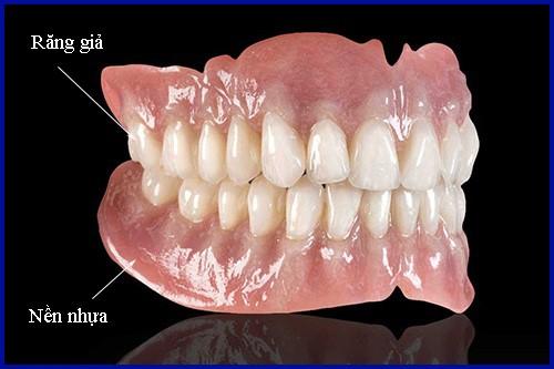 Chi phí làm răng giả 2