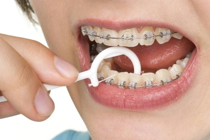 Chi phí niềng răng chỉnh nha