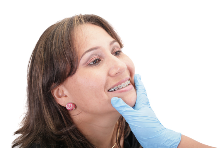 Chi phí niềng răng cho người lớn hết bao nhiêu?