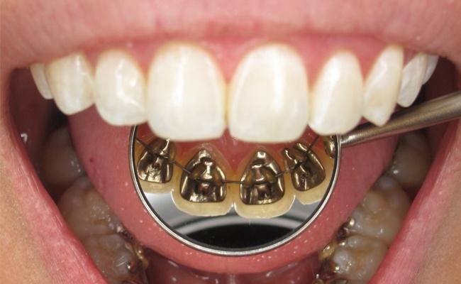 Chi phí niềng răng mặt trong giá bao nhiêu?