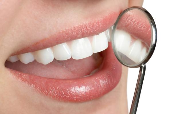 Có nên bọc răng sứ không?