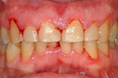 Dấu hiệu viêm chân răng 1