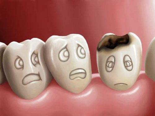 Dấu hiệu viêm chân răng 2